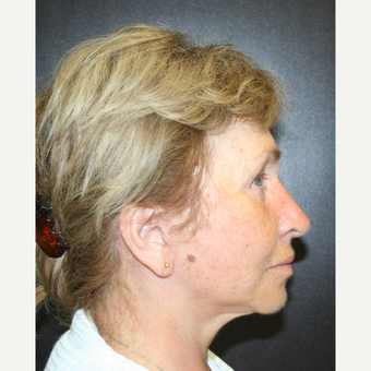 55-64 year old woman treated with SMAS Facelift after 3405706