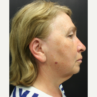 55-64 year old woman treated with SMAS Facelift before 3405706