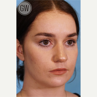 18-24 year old woman treated with Rhinoplasty before 3473461