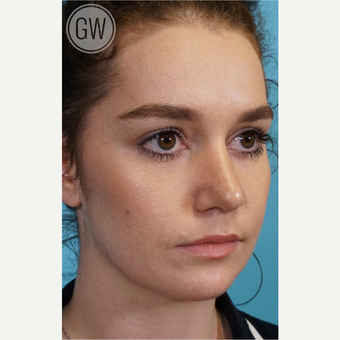 18-24 year old woman treated with Rhinoplasty after 3473461