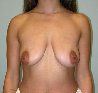Breast Augmentation with Natrelle Inspira implants on 5'2, 127 pound mother of 2 3089512