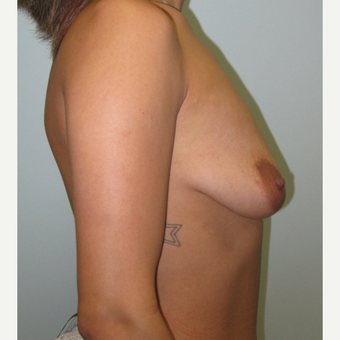 Breast Augmentation with Natrelle Inspira implants on 5'2, 127 pound mother of 2 before 3089512