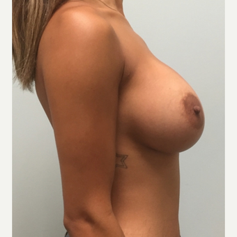Breast Augmentation with Natrelle Inspira implants on 5'2, 127 pound mother of 2 after 3089512