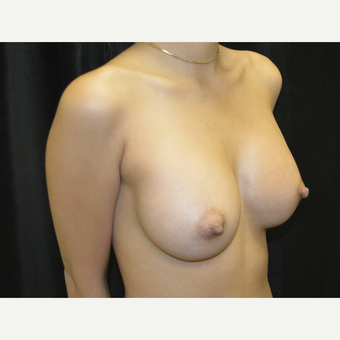 18-24 year old woman treated with Breast Implants after 3423909