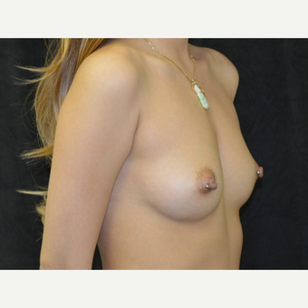 18-24 year old woman treated with Breast Implants before 3423909