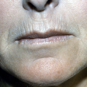 55-64 year old woman treated with Dermabrasion before 1777694