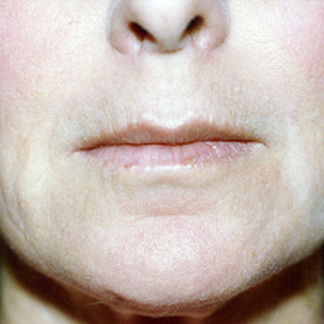 55-64 year old woman treated with Dermabrasion after 1777694