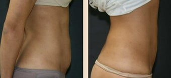 Abdominoplasty after 634415