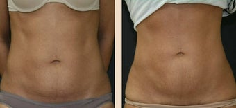 Abdominoplasty before 634415