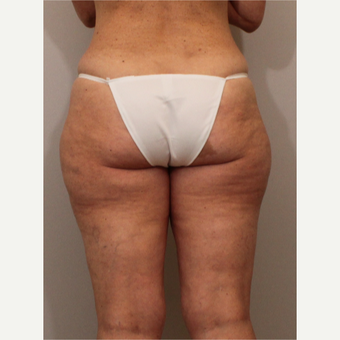 35-44 year old woman treated with Liposuction before 3494192