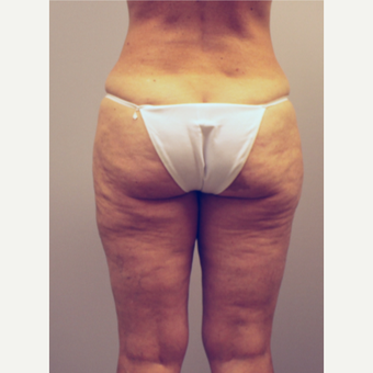 35-44 year old woman treated with Liposuction after 3494192