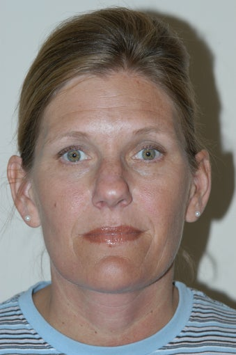 45-54 year old woman treated with Rhinoplasty before 1568877