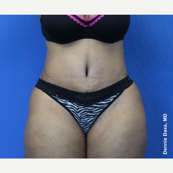 25-34 year old woman treated with Tummy Tuck after 3679755