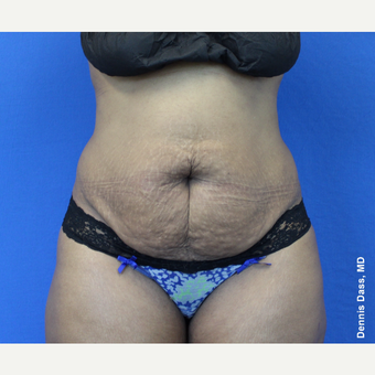 25-34 year old woman treated with Tummy Tuck before 3679755