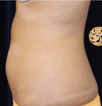 25-34 year old woman treated with CoolSculpting before 2052289