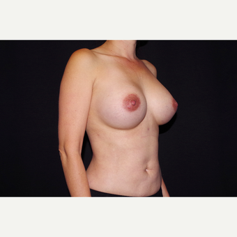 35-44 year old woman treated with Breast Implant Revision after 2998888