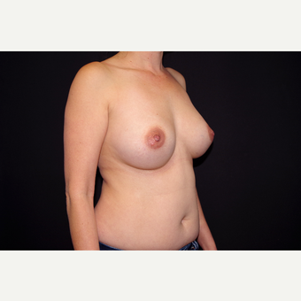35-44 year old woman treated with Breast Implant Revision before 2998888