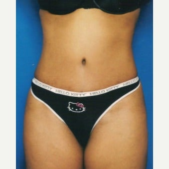 Tummy Tuck after 1632169