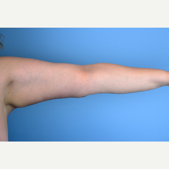 35-44 year old woman treated with Arm Lift after 3644189