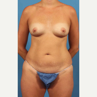 35-44 year old woman treated with Breast Implants with Shaped Implants, Mini Abdominoplasty before 3787252