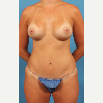 35-44 year old woman treated with Breast Implants with Shaped Implants, Mini Abdominoplasty after 3787252