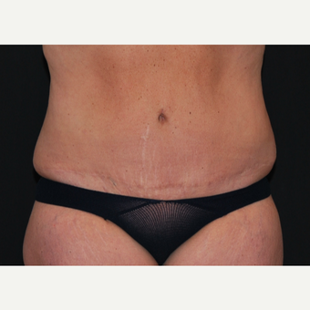 45-54 year old woman treated with Tummy Tuck after 3666052