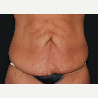 45-54 year old woman treated with Tummy Tuck before 3666052