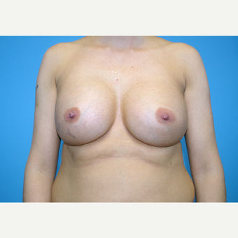 25-34 year old woman treated with Breast Implants after 3440099