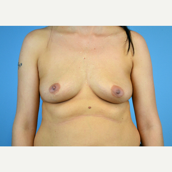 25-34 year old woman treated with Breast Implants before 3440099