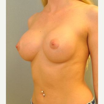 25-34 year old woman treated with Breast Augmentation after 3842334