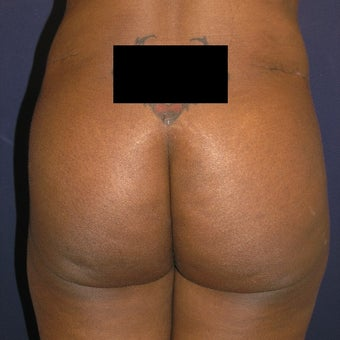25-34 year old woman treated with Butt Augmentation