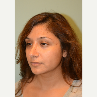 28 year old woman treated with Rhinoplasty after 3169868