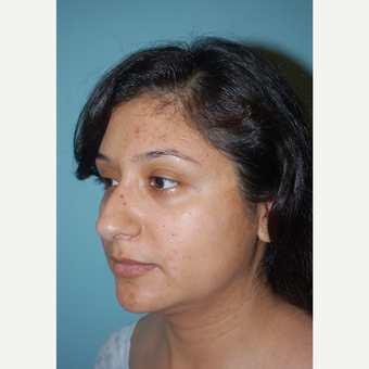 28 year old woman treated with Rhinoplasty before 3169868