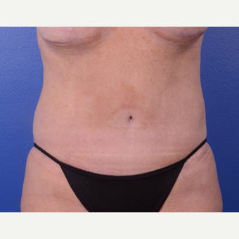 35-44 year old woman treated with Tummy Tuck after 2993941