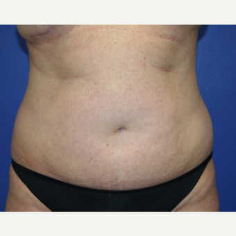 35-44 year old woman treated with Tummy Tuck before 2993941