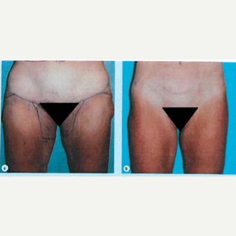 45-54 year old woman treated with Thigh Lift before 3811279