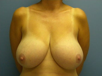 Bra size 34G with neck, back and should pain.  before 1062554