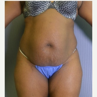 25-34 year old woman treated with Tummy Tuck before 2489457