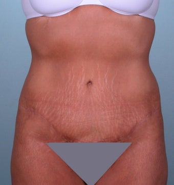 No Drian Tummy tuck after 379229