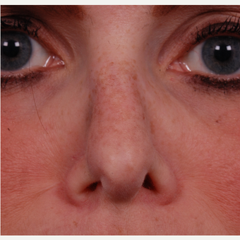 35-44 year old woman treated with Rhinoplasty with rib graft before 3180124