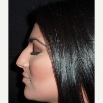 18-24 year old woman treated with Rhinoplasty before 3838811