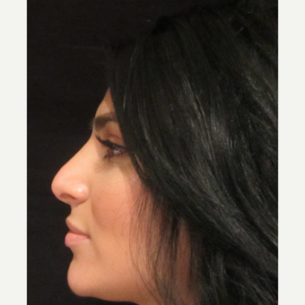18-24 year old woman treated with Rhinoplasty after 3838811