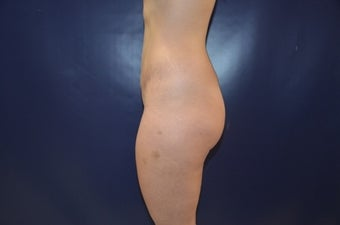25 year-old female for Brazilian Buttock Augmentation before 1440203