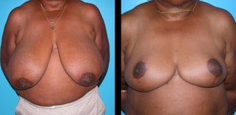 65 Year Old Woman - Breast Reduction before 1094104