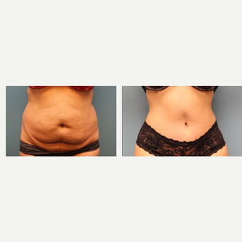 35-44 year old woman treated with Tummy Tuck before 3630091