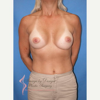 35-44 year old woman treated with Breast Implants after 3095146