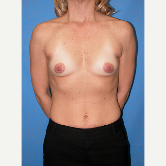 35-44 year old woman treated with Breast Implants before 3095146