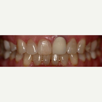 35-44 year old woman treated with Dental Crown before 3743717