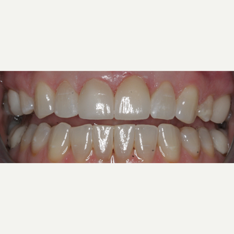 35-44 year old woman treated with Dental Crown after 3743717