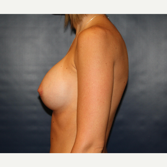 25-34 year old woman treated with Breast Augmentation after 3033595
